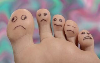 causes of smelly feet- pitted keratolysis