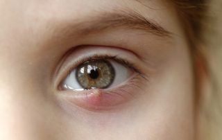 a girl with a stye- what is a stye?