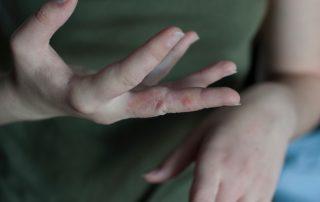 scabies rash- symptoms of scabies